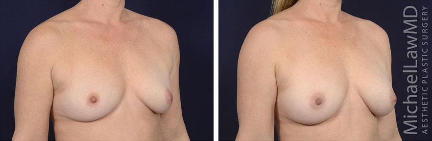breastgraft5b_2_25_21