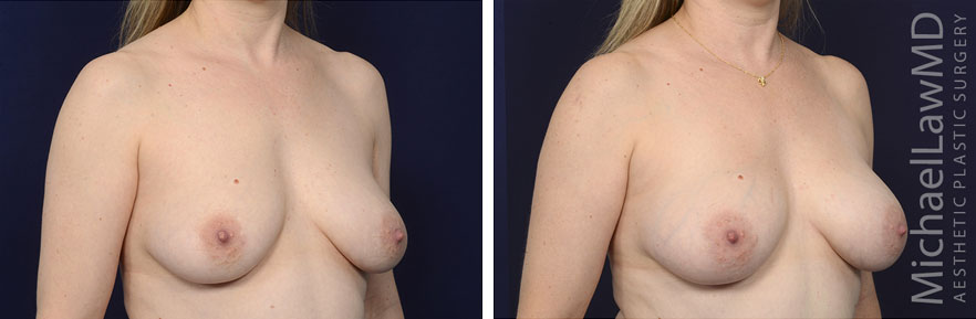 breastgraft7b_2_25_21