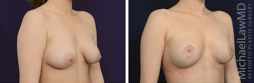 breastgraft8b_2_25_21