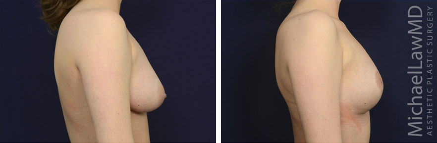 breastgraft8c_2_25_21