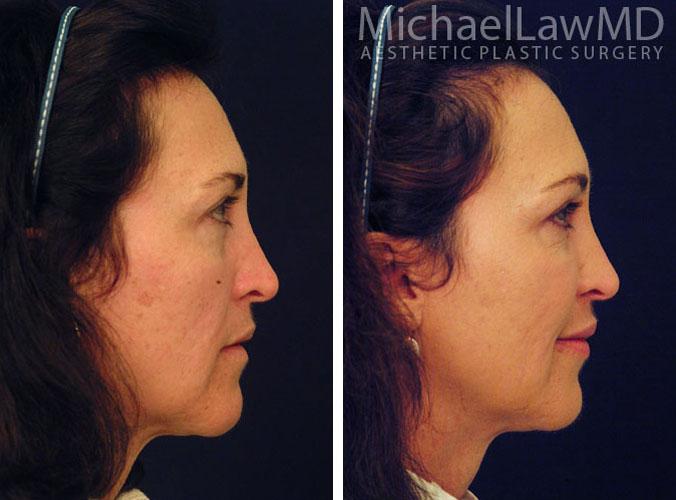 Facial Rejuvenation Procedures