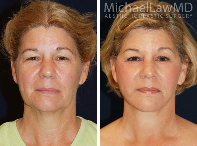 rejuvenation surgery implant Augmentation breast breast facial