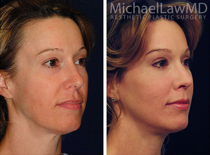 Facial Rejuvenation Procedures