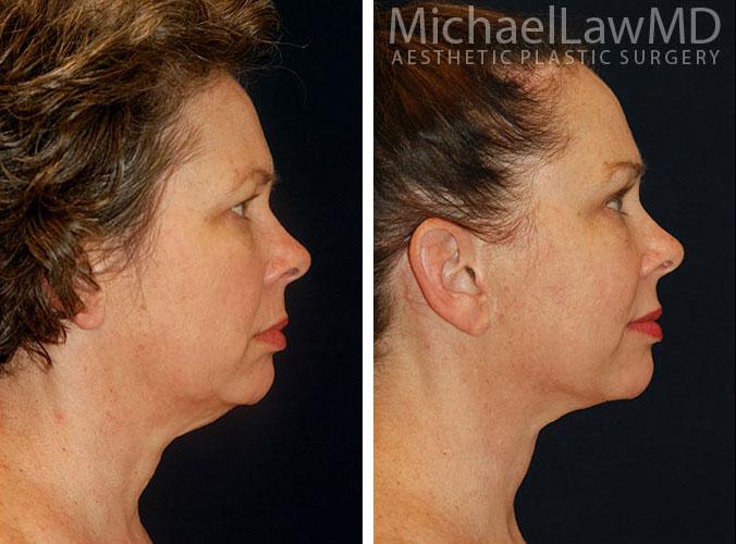 Facial Rejuvenation treatments