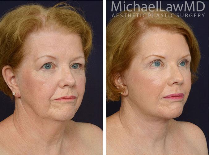 Facial Rejuvenation Raleigh NC