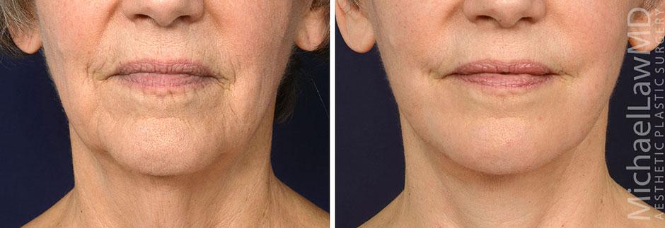Full Facial Rejuvenation Procedures