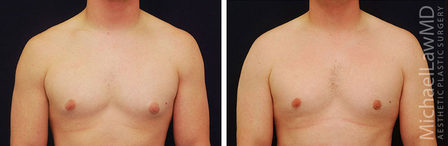 f-Gynecomastia - Male Breast Reduction Photo