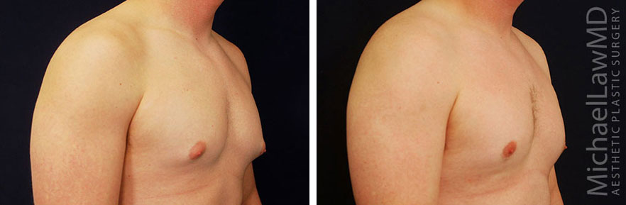 Gynecomastia - Male Breast Reduction Photo