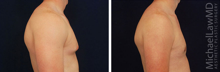 Gynecomastia - Male Breast Reduction Photo