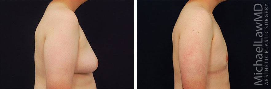 l-Gynecomastia - Male Breast Reduction Photo