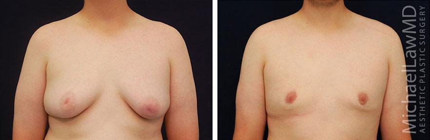12-f-Gynecomastia - Male Breast Reduction Photo