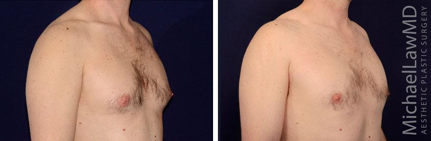 o-Gynecomastia - Male Breast Reduction Photo