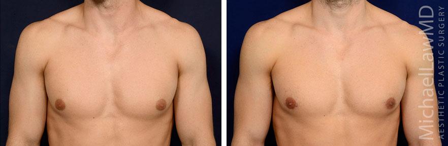 f-Gynecomastia - Male Breast Reduction Photo