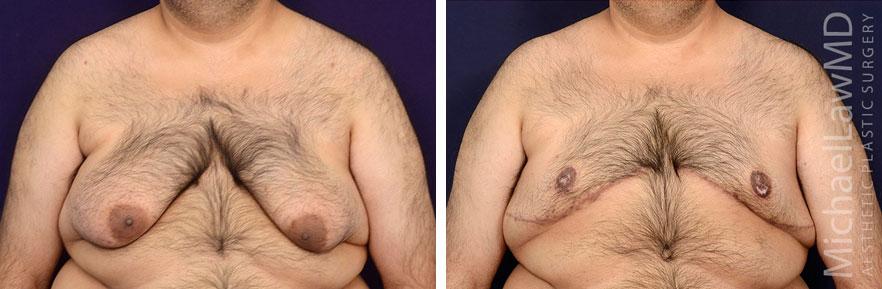 20-f-Gynecomastia - Male Breast Reduction Photo