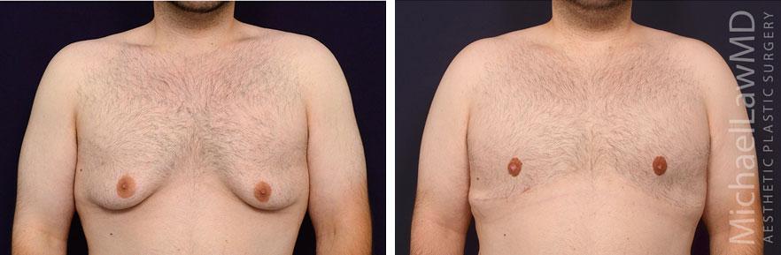 22-f-Gynecomastia - Male Breast Reduction Photo
