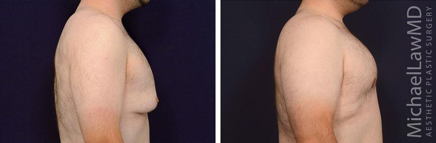 gynecomastia-22s-r2