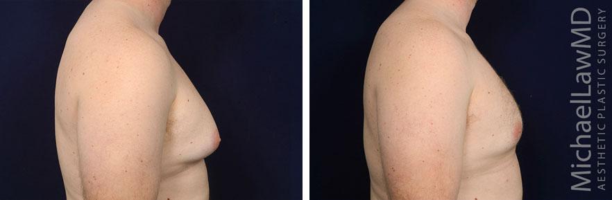 gynecomastia-25s-r2