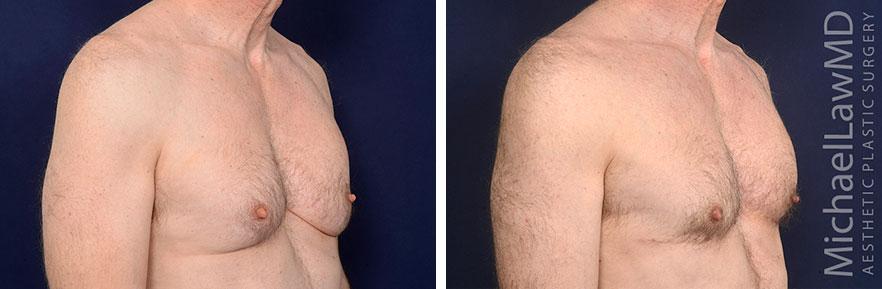 0-Gynecomastia - Male Breast Reduction Photo