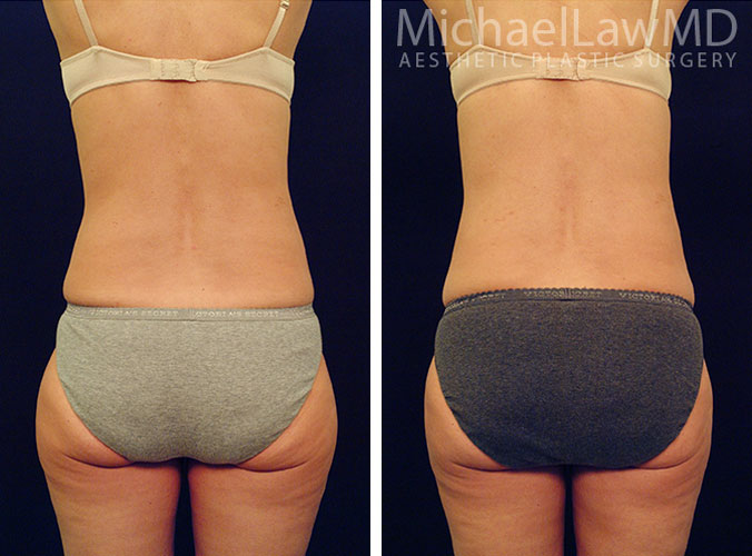 Liposuction Photos