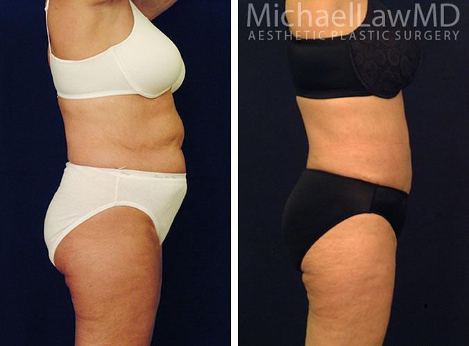 Liposuction Photos
