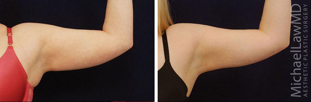 Liposuction in Raleigh NC