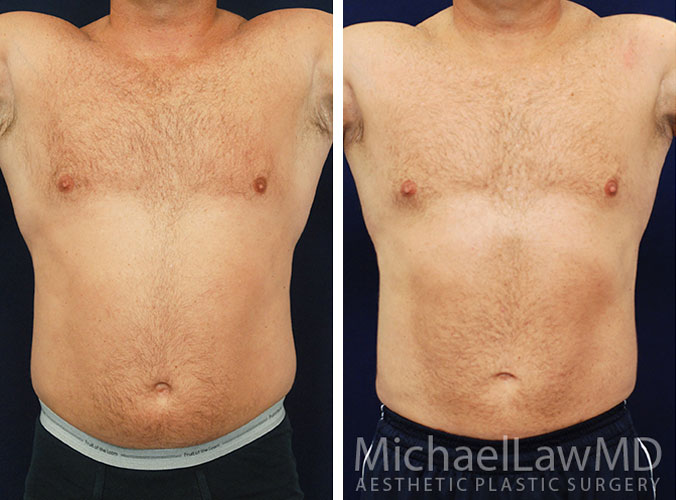Liposuction Surgery Raleigh NC