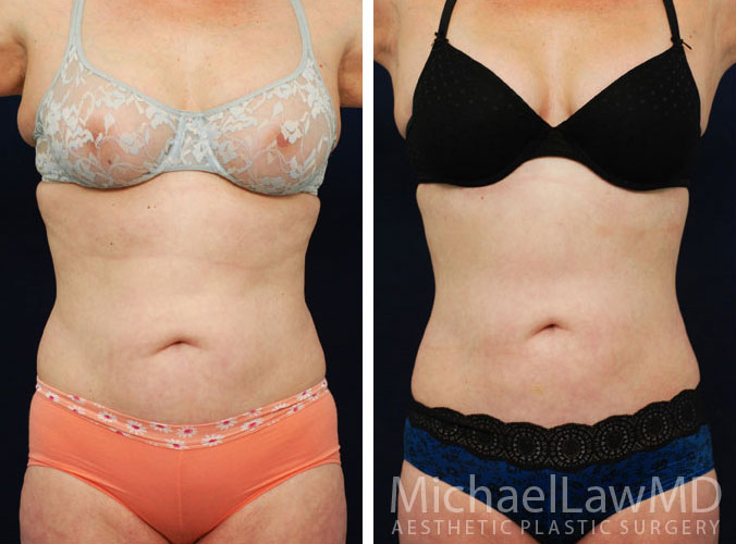 Liposuction Surgery Raleigh NC