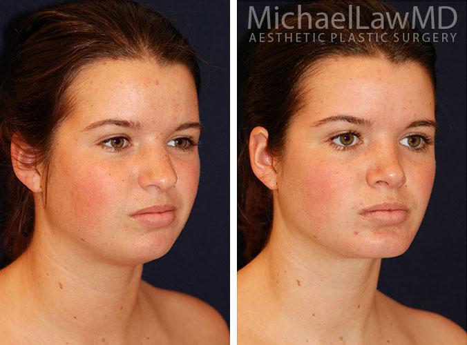 Liposuction Images