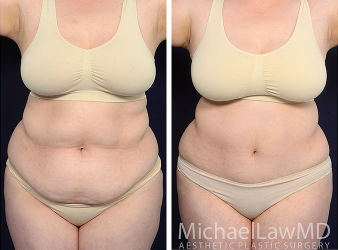 liposuction-50-f