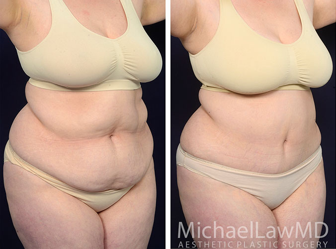 liposuction-50-o