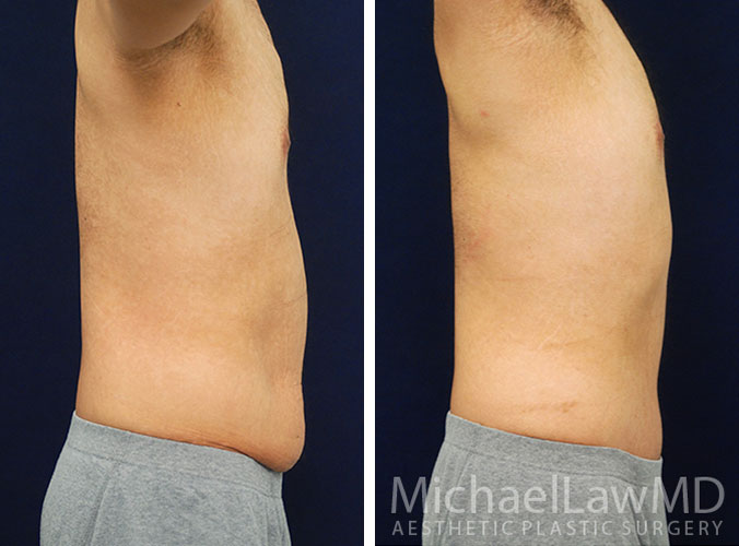 Male Tummy Tuck Raleigh NC