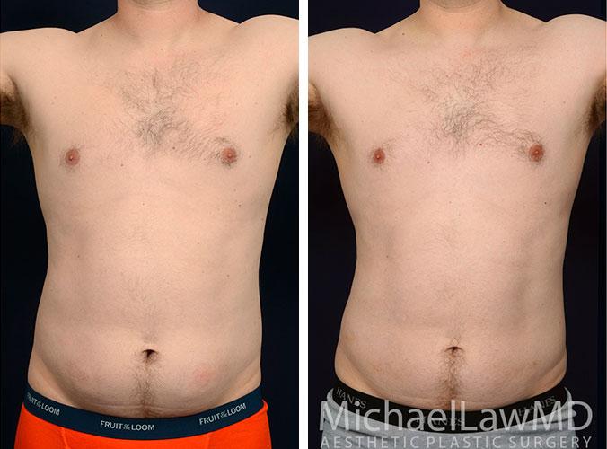 mens-body-contouring-1a