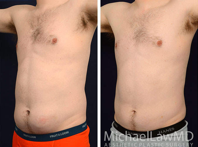 Body Lift In Scottsdale Body Contouring After Weight Loss Dr