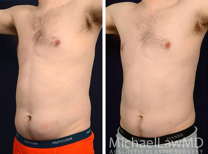 mens-body-contouring-1b