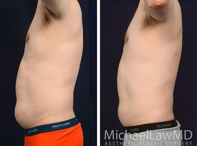 mens-body-contouring-1d
