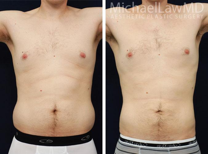 mens-body-contouring-4b