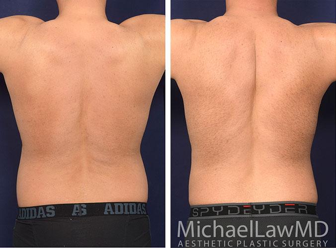 mens-body-contouring-5b