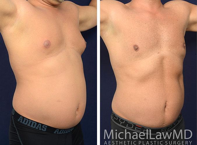 mens-body-contouring-5c
