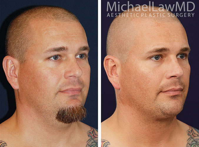 Chin Liposuction/ Neck liposuction