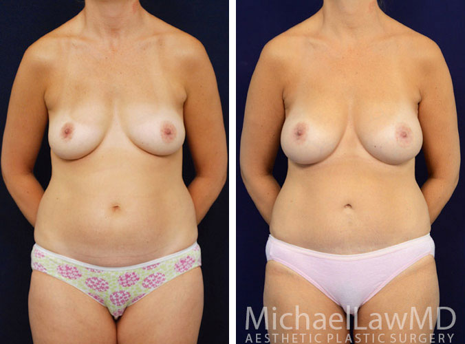 mommy makeover photos