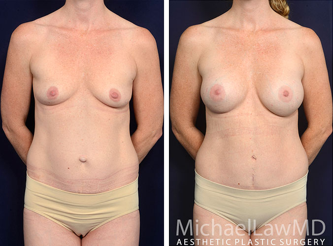 mommy-makeover-27-f