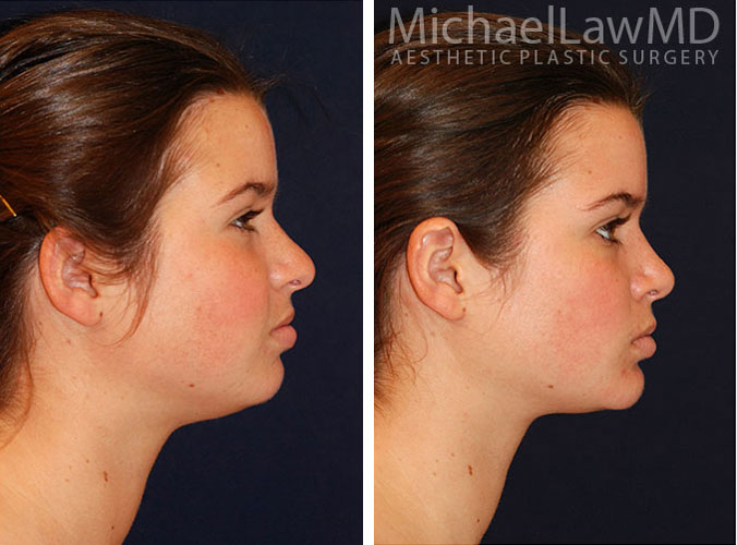 Neck Liposuction Surgery