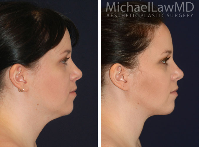 Neck Liposuction Surgery