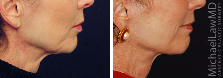 before and after photo of patient who underwent a lower face lift