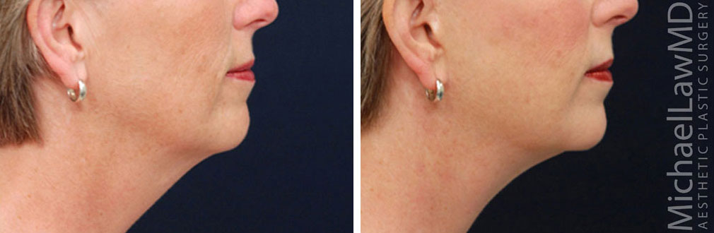 Neck Lift Rejuvenation