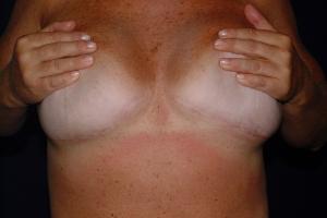 Reverse Upper Abdominoplasty Scar