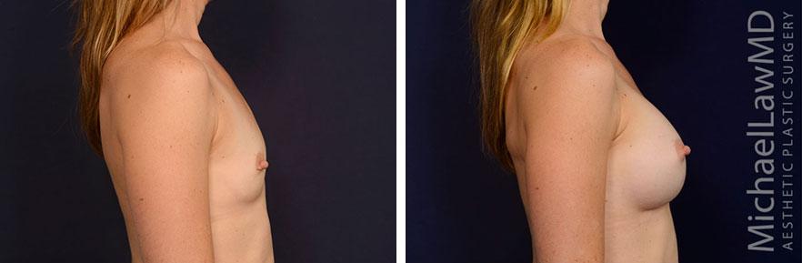 Sientra Breast Implants