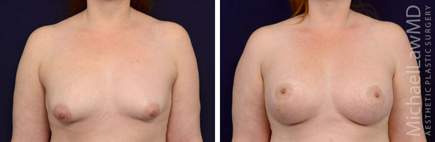 Sientra Breast Implants