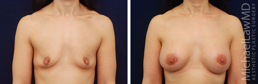Breast Surgery with Strattice