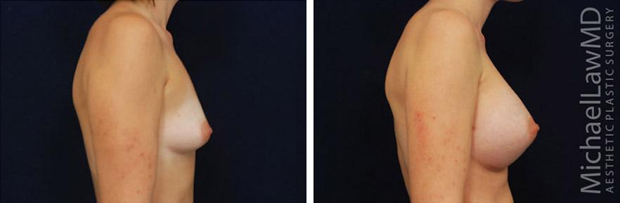 Tubular or Tuberous Breast Photo Gallery